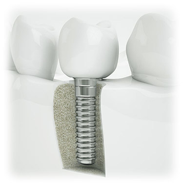 Implant Placement and Restoration